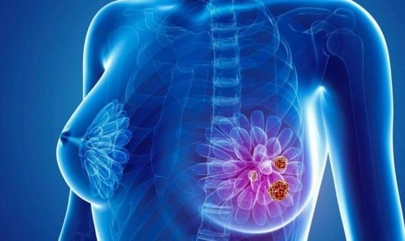 Combinație de medicamente pentru cancerul mamar ce vizează celulele canceroase, dar și vascularizarea lor